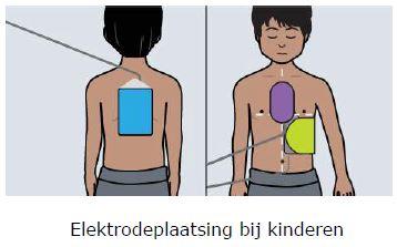 Plaatsing van kinderelektroden