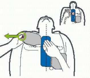 Plaatsing Zoll CPR-D elektroden