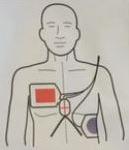 Plaatzin Stat-Padz elektroden