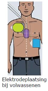 Plaatsing van volwassen elektroden
